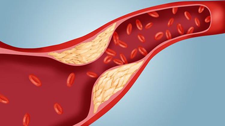 eliminar_colesterol_40_dias